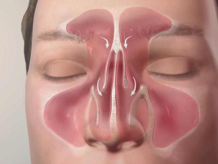 Sinuses - PostSurgery